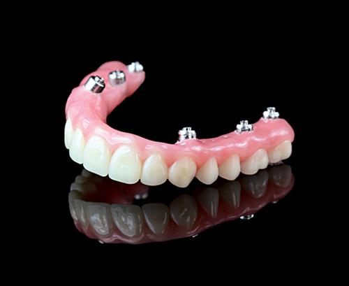 mdl-denture
