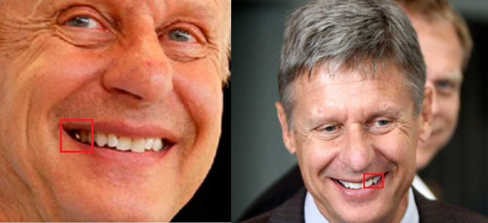 Up first is the Libertarian Gary Johnson. Looks pretty decent, right? There's not a lot to be said here. He has a gold crown, appears to have whitened his teeth, and some misalignment is causing a small gap that is outlined. This could be fixed with orthodontics.