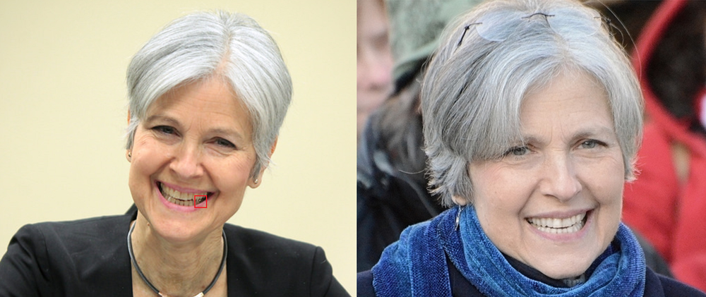 Next up is Green party candidate Jill Stein. She has a gold onlay in the lower left and what looks to be a fair amount of whitening performed between these two pictures.
