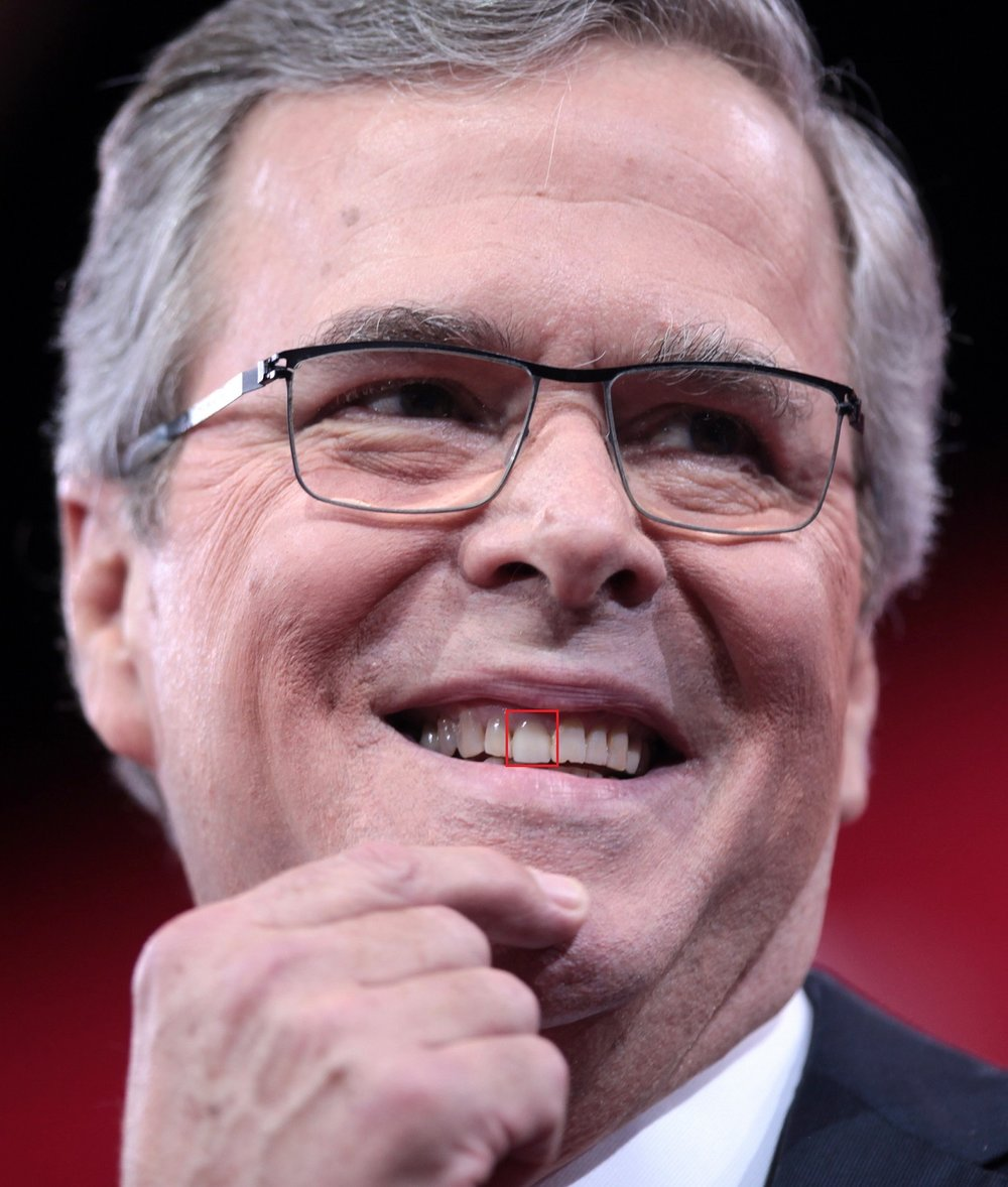 Former governor Jeb Bush-- #8, or his front right incisor, could potentially be a crown or veneer. The coloration is more pearly and more uniform in shape than the surrounding teeth. The incisor next to it has chipping along the edges that isn't present on #8. The plaque accumulation is also visible on #9 and #6, but not on #8, which is typical of a ceramic restoration as it does not accumulate plaque the same as a natural tooth. That said, it's a tough call. Otherwise, we see some chipping and minor gum recession, but nothing else of note.