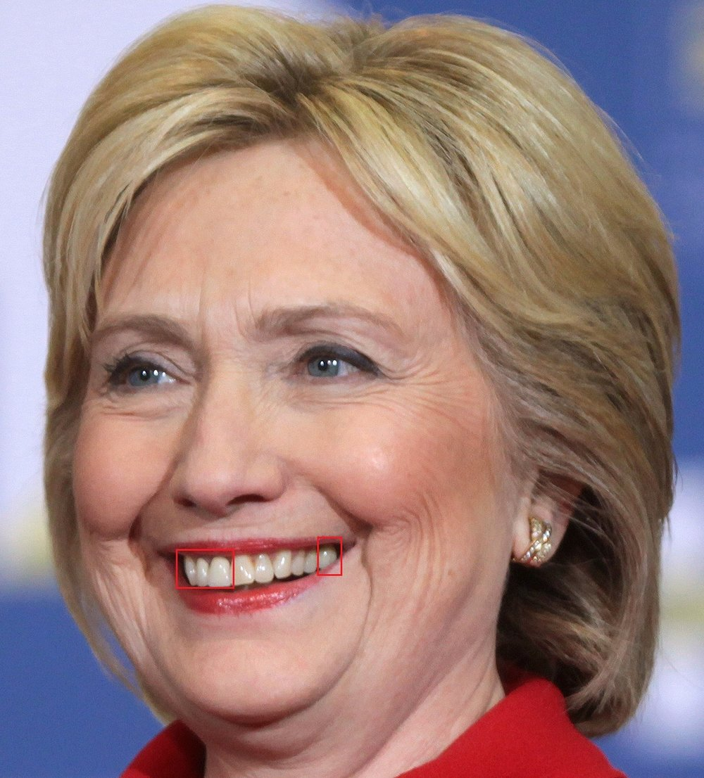 Secretary Hillary Clinton has had a bit of work done.  We count three crowns, #7, 8 and 14 (her molar). The color difference is pretty obvious here. We think it probably matched pretty well at one point, but over time the surrounding teeth have discolored.