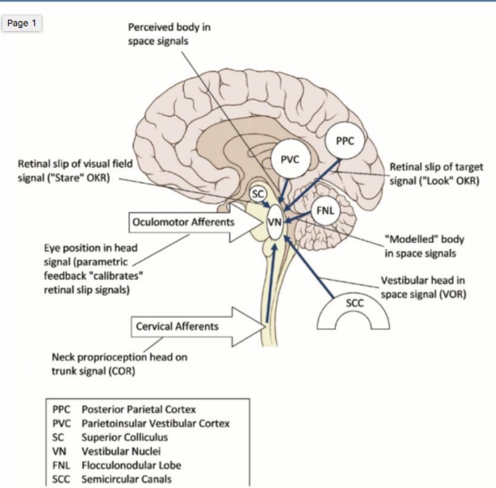 Cervicogenic Dizziness, Cervical Vertigo