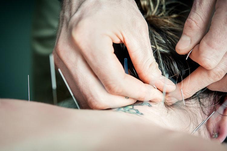 acupuncture+pic.jpg