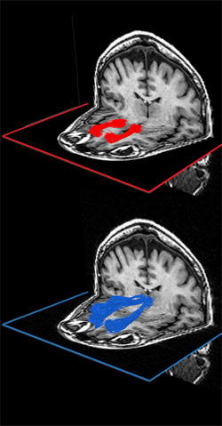 Brain scans showing the white-matter pathways involved in everyday learning: Top, the pathway shown in red that connects the medial prefrontal cortex to the ventral striatum and, bottom, the pathway shown in blue that connects the medial prefrontal cortex to the thalamus.