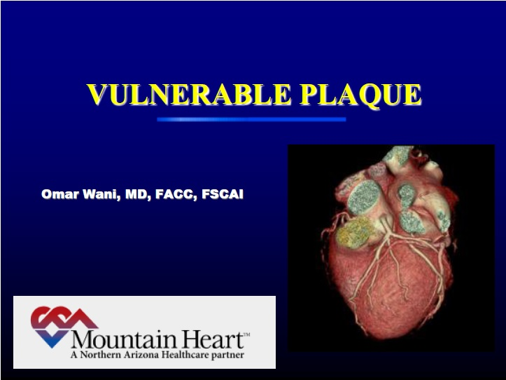 Does Negative Stress Rule Out Vulnerable Plaque? - Omar Wani, MD, FACC, FSCAI