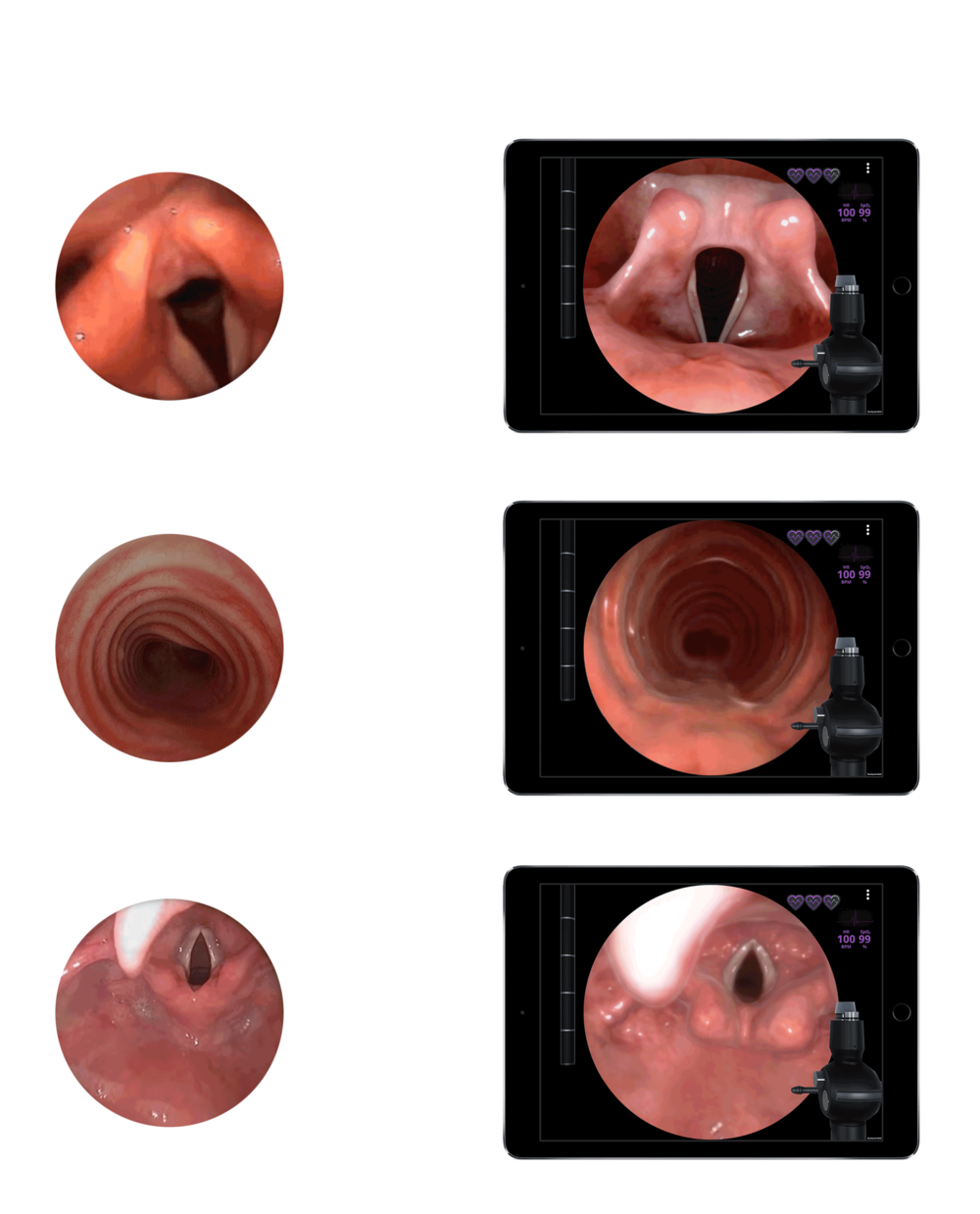 airway-comparison-image.png