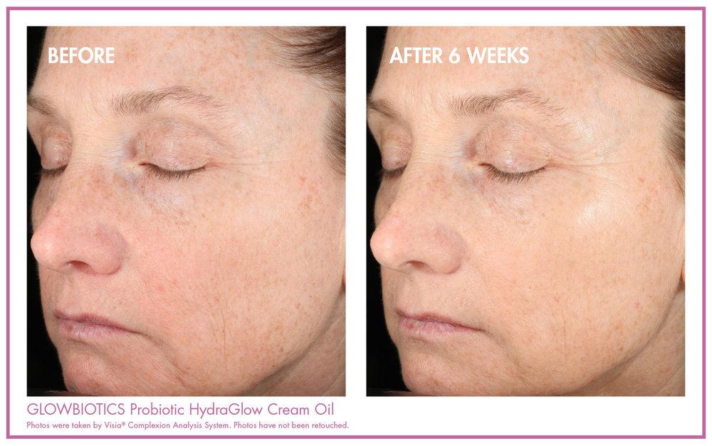 Probiotic HydroGlow Cream