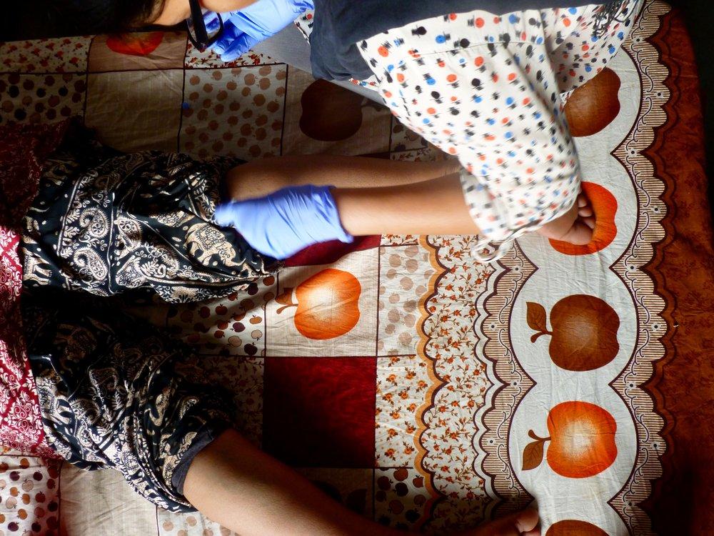 One of the volunteers bleeding engorged vessels behind a patients knee.