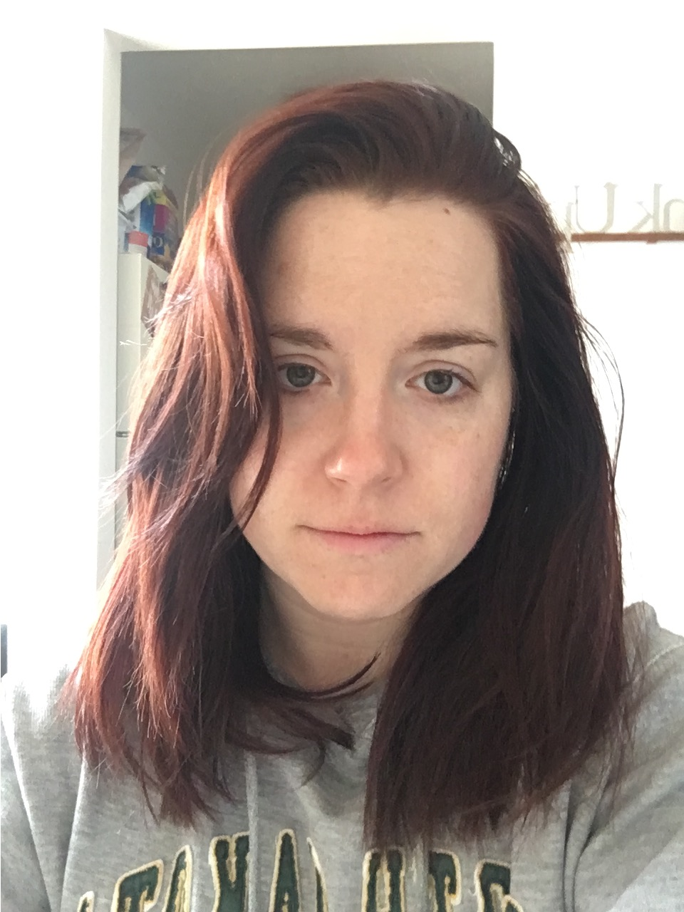 """I took this photo as a """"before"""" for a collagen supplement I've been trying, but I think it accurately represents just how fucking tired I am all the time."""