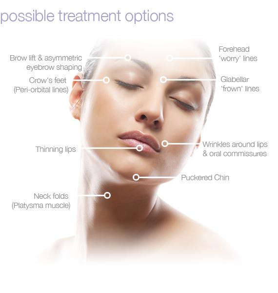 Common Botox Treatment Areas