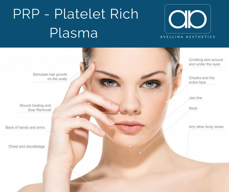 Platelet Rich Plasma Treatment Areas.png