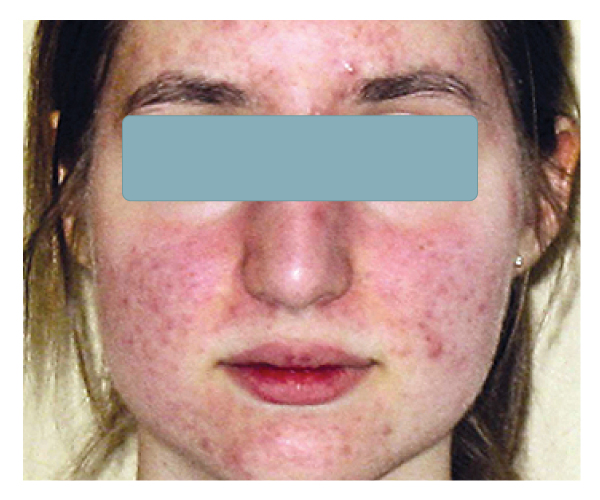 Acne2-before.jpg