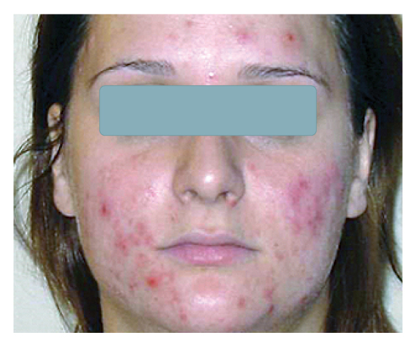 Acne1-before.jpg