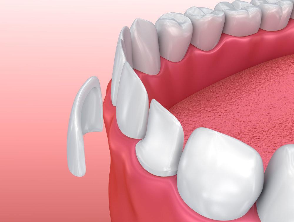 Porcelain veneers can be used to repair damaged teeth.