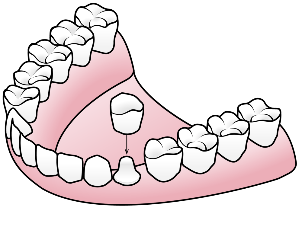 Porcelain crowns can be used to restore teeth.