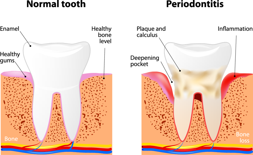 Periodontal therapy is commonly referred to as gum disease.