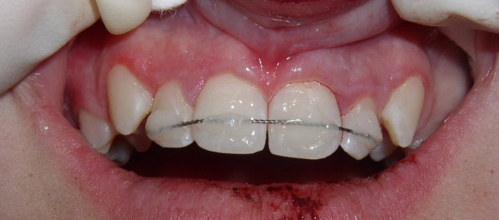Tooth put back in original place and splinted