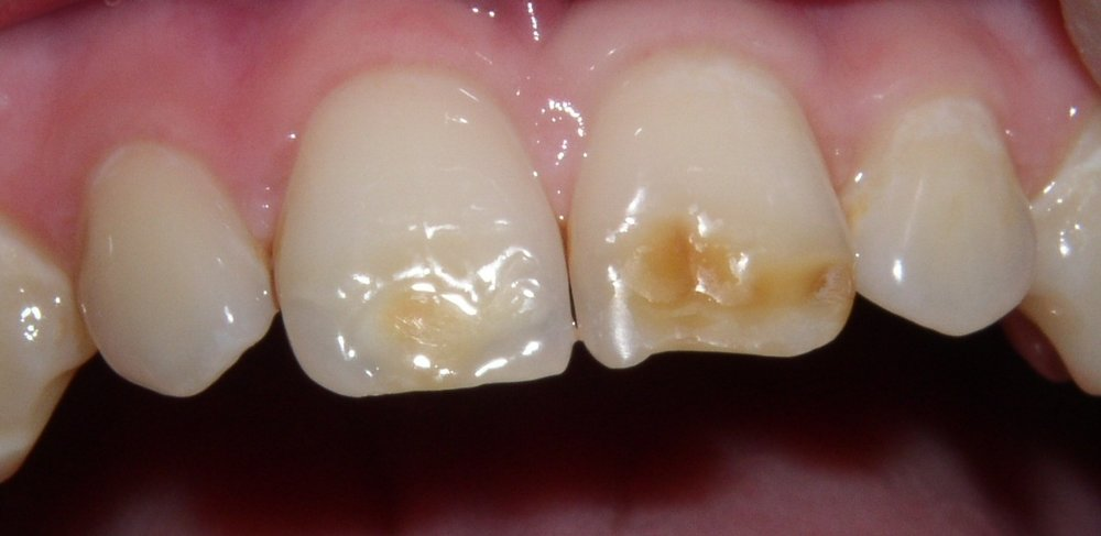 Faq What Are Hypocalcified Teeth Discovery Pediatric Dentistry
