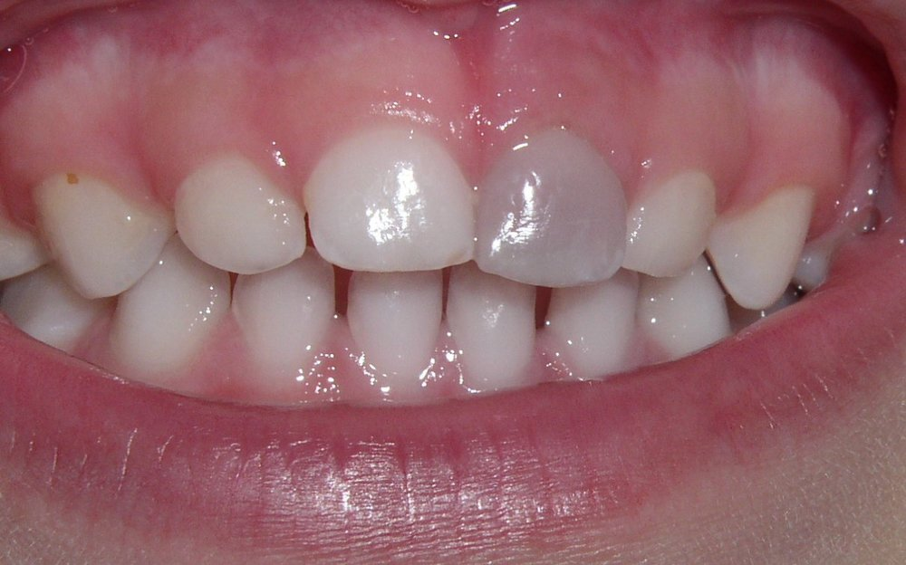 Roxane Boiteau  07-01-11   Tooth #F= Discolored.JPG