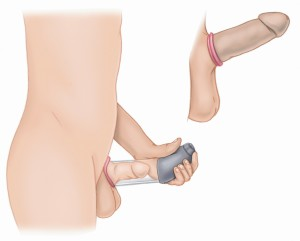 Vacuum-Device-therapy-300x241.jpg