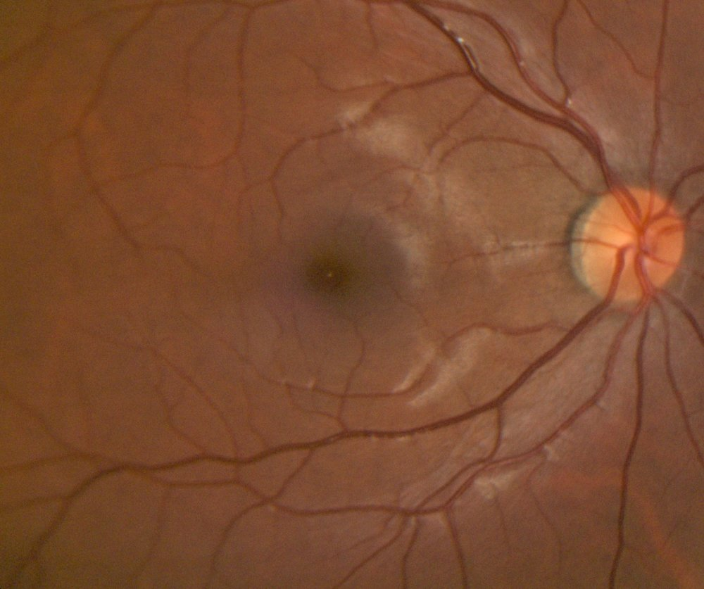 Example of Retinal Photograph