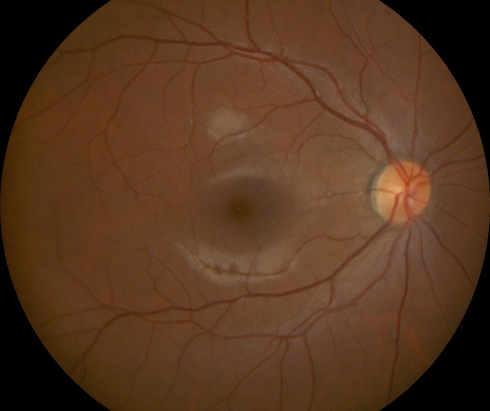Retinal Photo Example (4).png