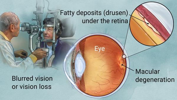 An eye disease that causes permanent vision loss.