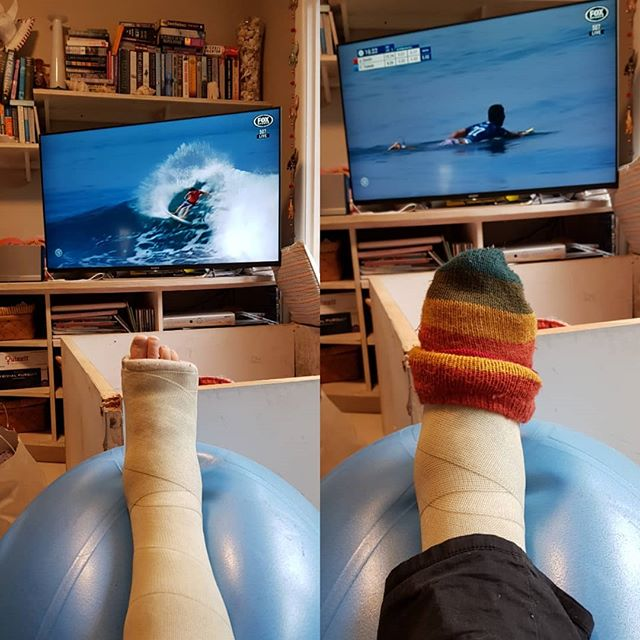 Thank heavens for the surfing and toe-beanies. 2 months done, 32 sleeps to go on the ankle fusion cast journey. Then the moon boot begins! Wato