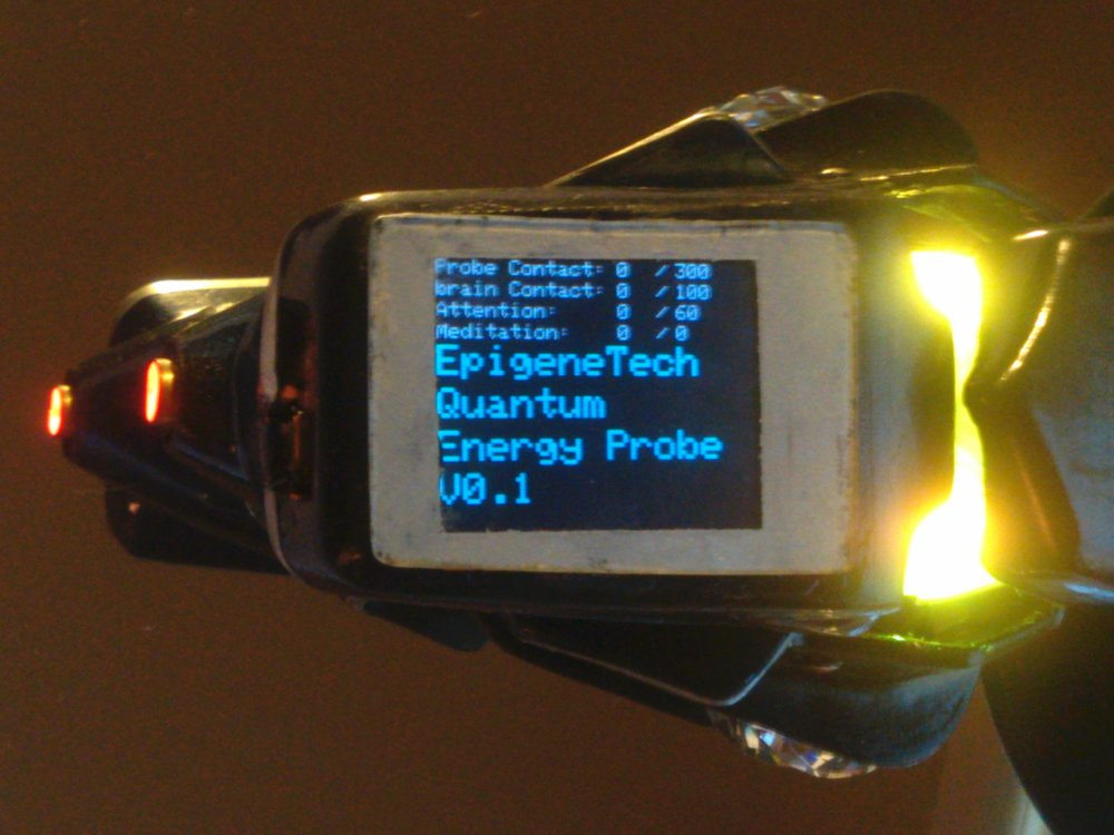 OptiSoniQ Probe.jpg