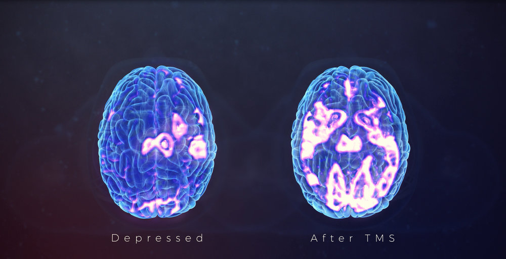 Brain Activity Levels Before and After TMS Treatments