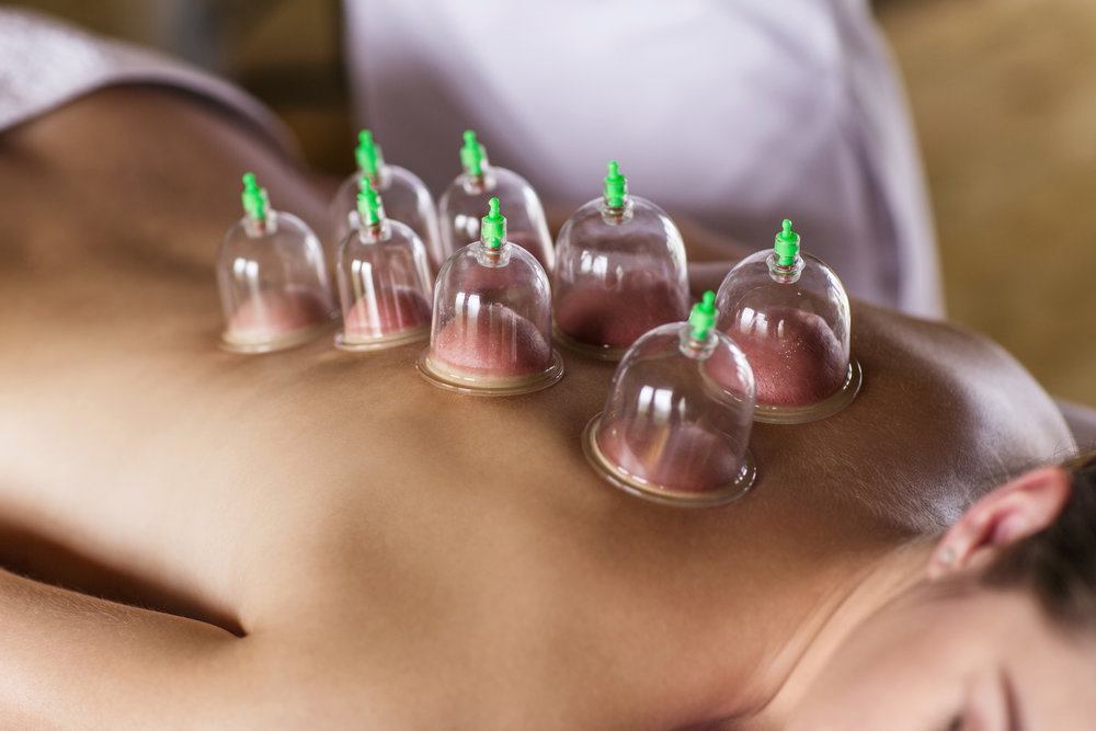cupping at the acupuncturist office