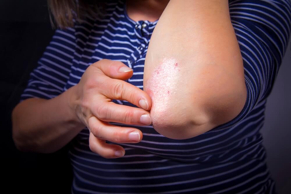 Symptoms of Psoriasis San Diego, California.