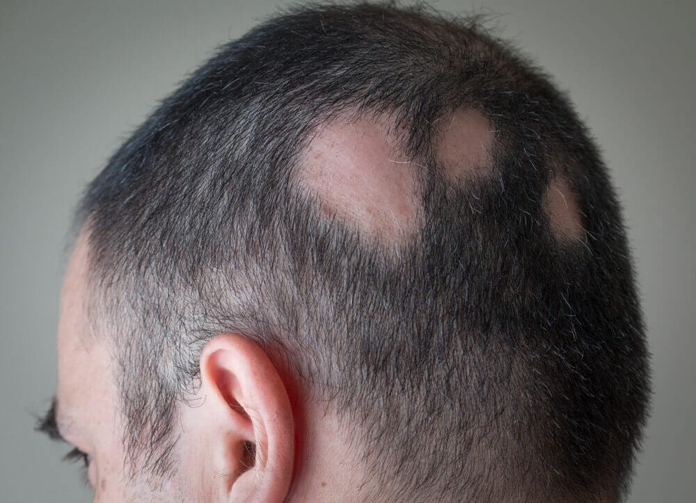 Alopecia treatment at California Dermatology & Clinical Research Institute.