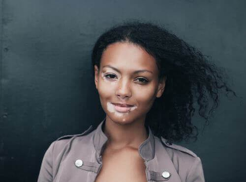 Treatment for Vitiligo in San Diego.