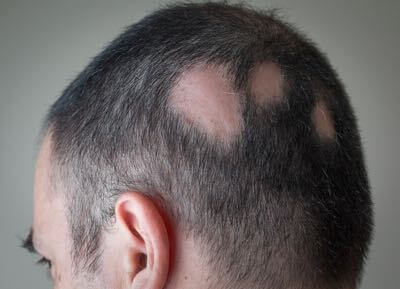 Alopecia Areata treatment in San Diego.