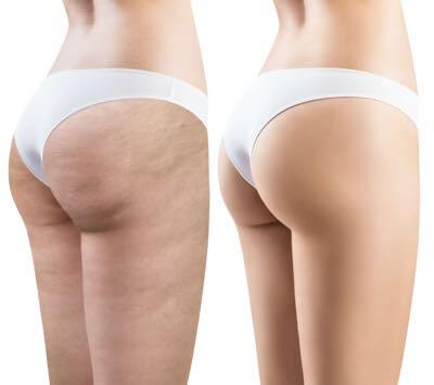 Treatment for Cellulite in San Diego.