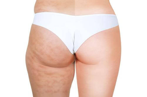 How to get rid of cellulite.