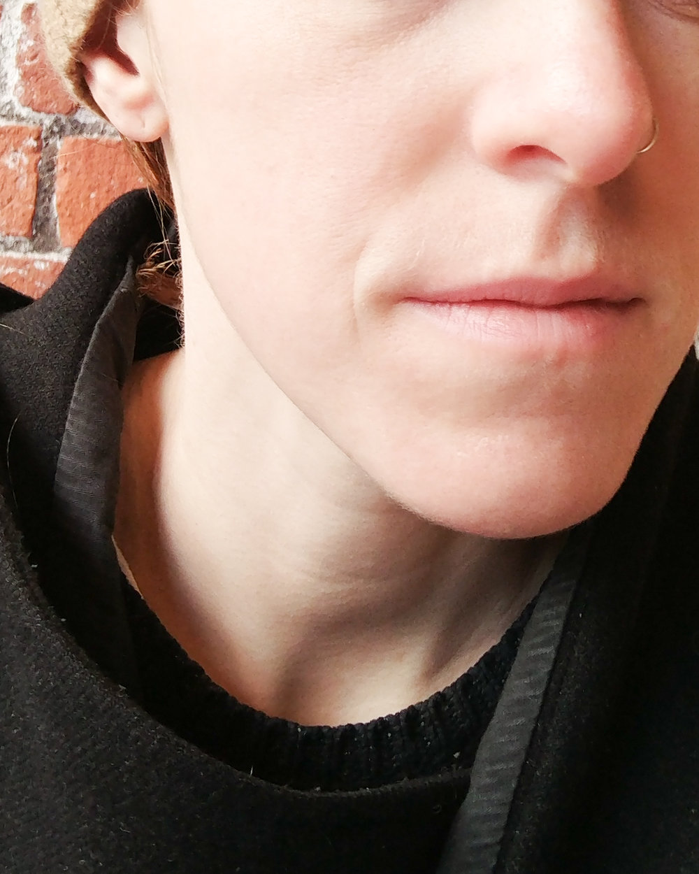 Three weeks later, after my skin had a chance to heal, using only natural products, no makeup!