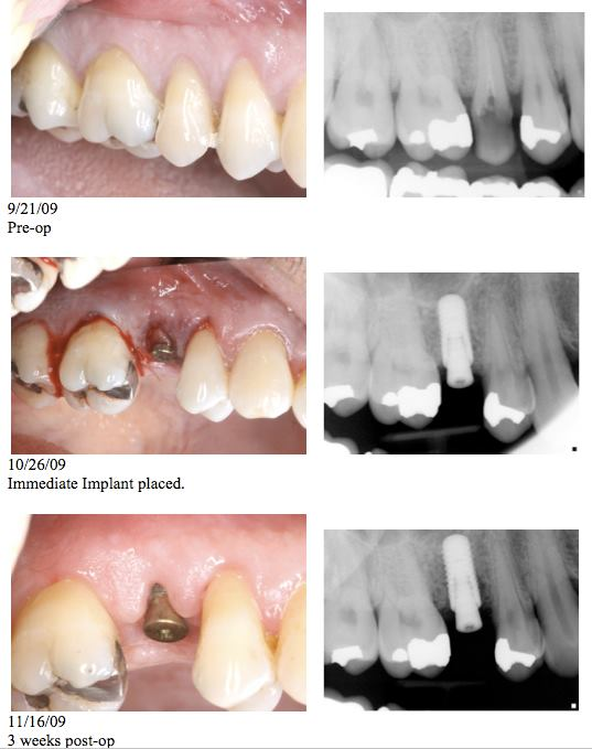 Immediate Implant Placement   In certain situations, immediate implant placement is the preferred solution.