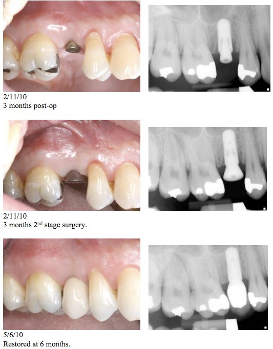 Immediate Implant Restored   This procedure, when indicated, really saves time!