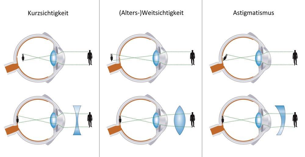 Bild_2_-_Grafik_-_Was_ist_denn_eigentlich..._eine_Sehschwäche[2].jpg