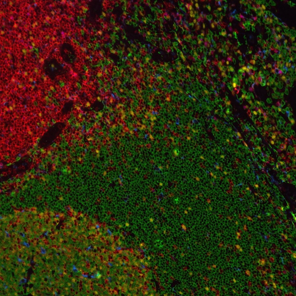Multiplex staining of immune cell markers and Ki67 in tonsil.  CD68 is shown in teal (Coumarin), CD4 in red (Texas red), CD20 in green (FAM), FoxP3 in purple (Cy5) and Ki67 in yellow (Rhodamine).
