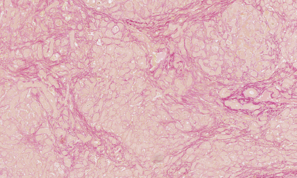 06   Hall's bilirubin stain on section of human liver demonstrating bile pigment in green (olive-emerald), muscle and cytoplasm in yellow and collagen in red