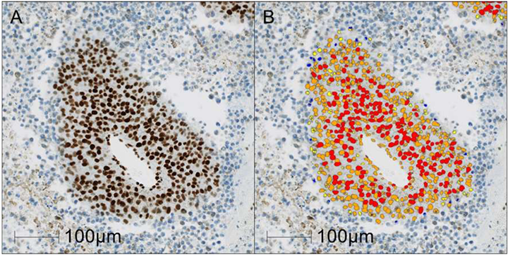 Acetyl Histone H3 showing (A) magnified area within original IHC image and (B) detection of Acetyl Histone H3 positive nuclei [cell classification overlay: negative (blue), low (yellow), medium (orange) or high (red)].
