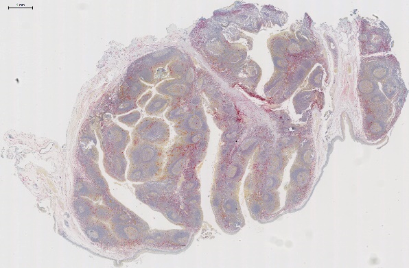 Dual IHC stained control tissue – human tonsil