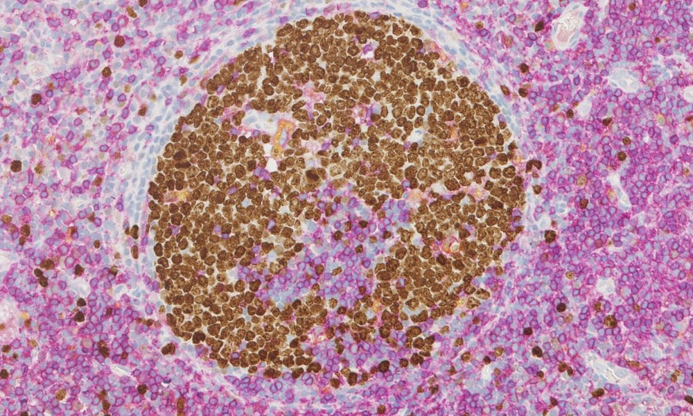 Multiplex IHC triple stain of proliferative and immune cell sub-populations; Ki67 (DAB/brown), CD4 (purple), CD68 (yellow) staining in human tonsil tissue.