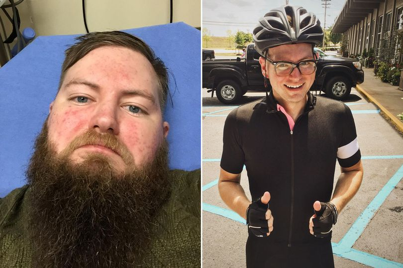This is NOT me, although at one point in time I was a fat bastard with a beard. This is what a year withot beer looks like