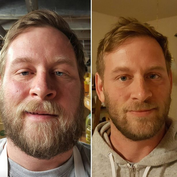 Another before and after photo of an avarage guy cutting back on booze