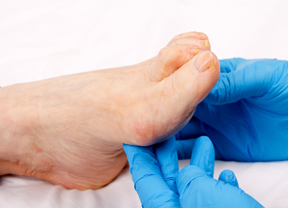 Complete foot care  - Thinning - Nail trimming - Callus reduction - Treatment of corns or calluses