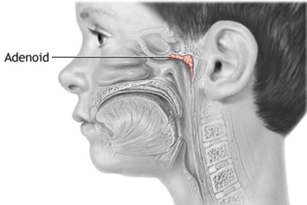 Nosní mandle